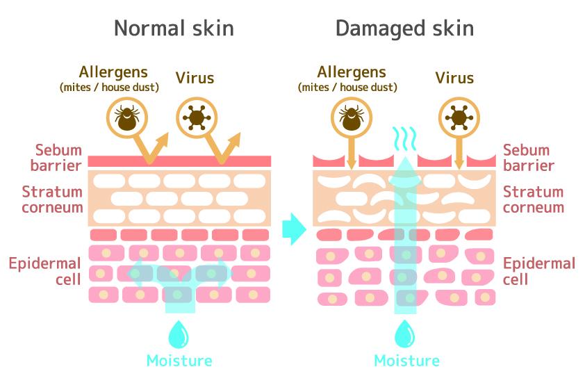 How Vesiderm Yolk Lecithin Liposomes gives you healthy skin? 3